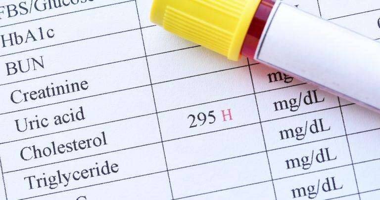 Triglicéridos: cómo bajarlos sin medicamentos